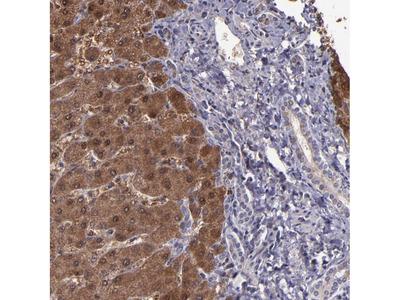 Anti-SERPINF2 Antibody