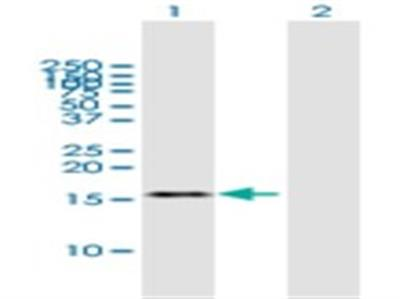 TAF13 Antibody
