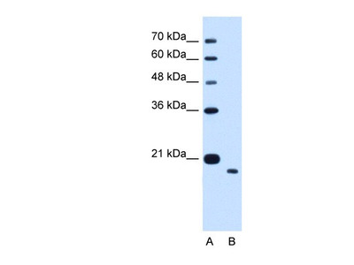 TMEM91 Antibody