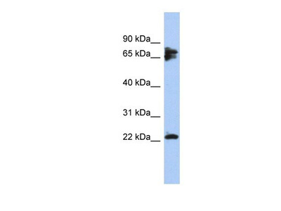 Calcineurin B Antibody