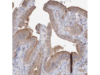 NMDARA1 Antibody