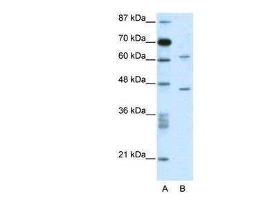 Rabbit Polyclonal TRMT1L Antibody