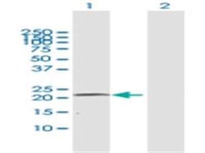 Cytochrome P450 4A Antibody