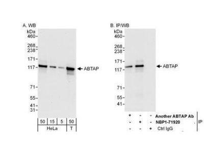 Rabbit Polyclonal ESF1 Antibody