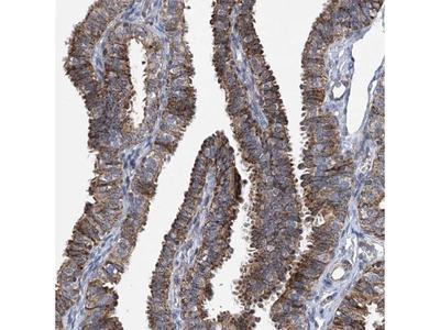 BCKDHB Antibody