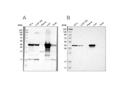 ACAA1 Antibody
