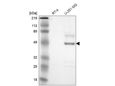 Serpin A3 / alpha 1-Antichymotrypsin Antibody