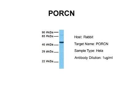 Rabbit Polyclonal PORCN Antibody