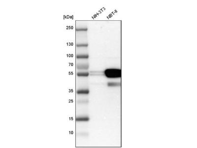 Cytokeratin 7 Antibody
