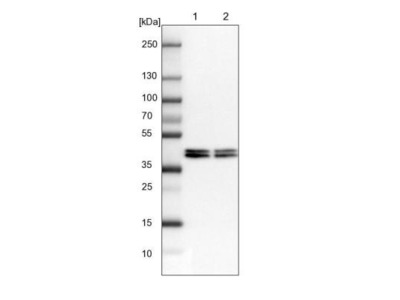 hnRNP AB Antibody