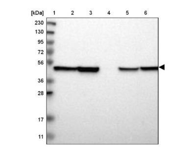 ABHD3 Antibody
