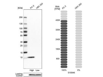 S100A6 Antibody