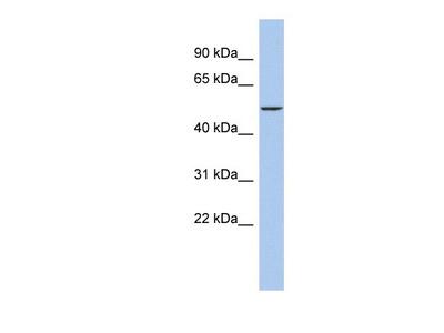 Rabbit Polyclonal DALRD3 Antibody