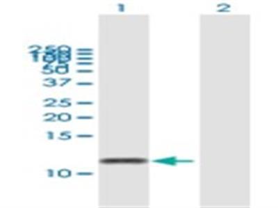 G gamma14 Antibody