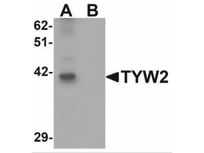 Rabbit Polyclonal TRMT12 Antibody
