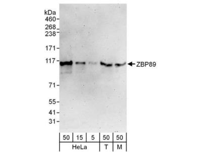 Rabbit Polyclonal ZNF148 Antibody
