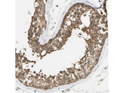 PRMT5 Antibody