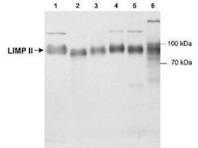 Reverse Cholesterol Transport Antibody Pack