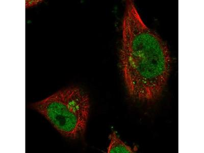 CWF19L1 Antibody