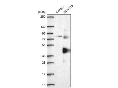 KCNK18 Antibody