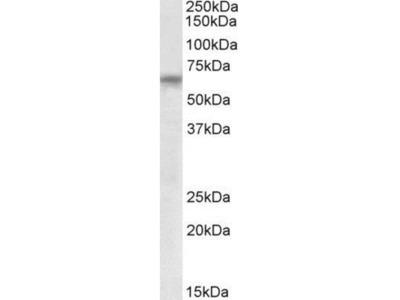 Goat Polyclonal TTC8 Antibody