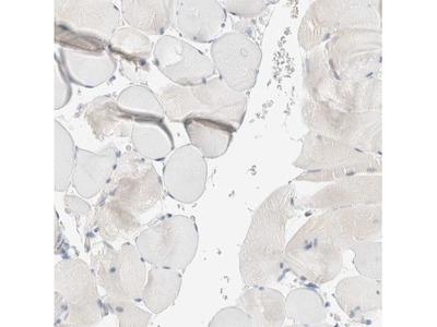 Sulfatase Modifying Factor 2 / SUMF2 Antibody