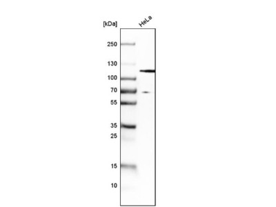 HGS Antibody