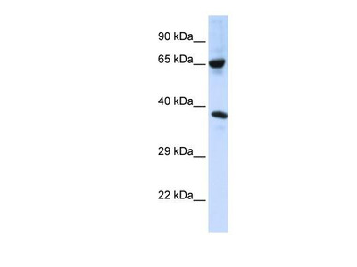ATAT1 Antibody