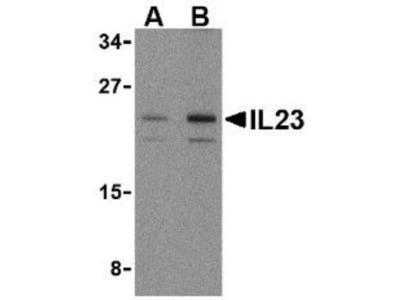 IL-23A /IL-23 P19 Antibody