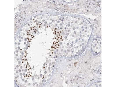 C6orf222 Antibody