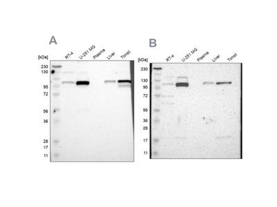 PKC alpha Antibody