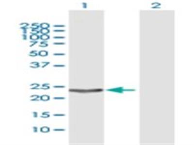Hematopoietic Prostaglandin D Synthase / HPGDS Antibody