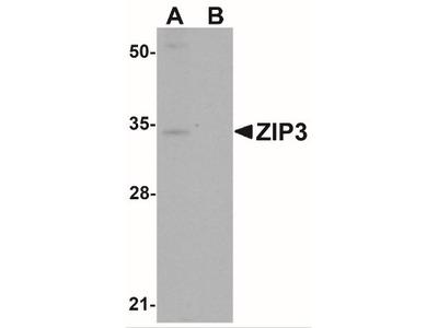 SLC39A3 Antibody
