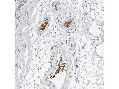 EPB41 Antibody