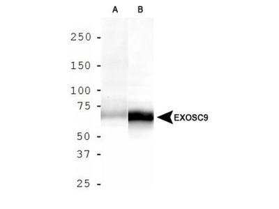 Exosome Component 9 Antibody