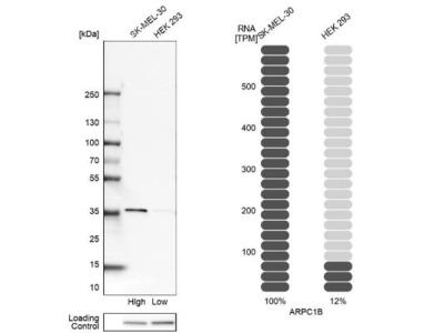 actin-related protein 2 / 3 complex subunit 1B Antibody