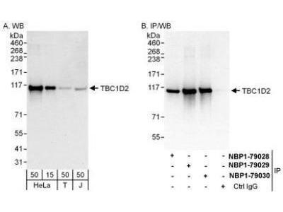 TBC1D2 Antibody