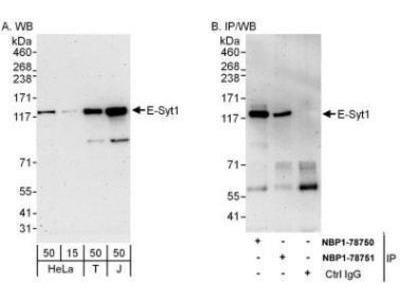Rabbit Polyclonal FAM62A Antibody
