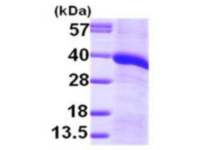 Recombinant Human Monoglyceride Lipase Protein