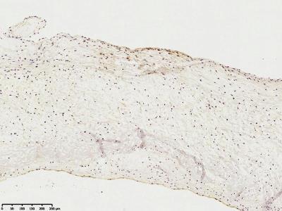 5'-Nucleotidase / CD73 Antibody