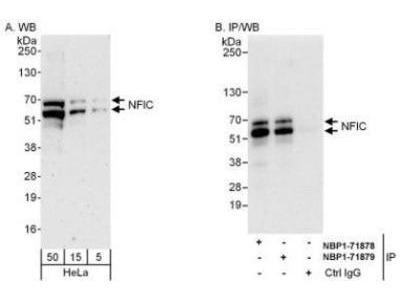 Rabbit Polyclonal NFIC Antibody
