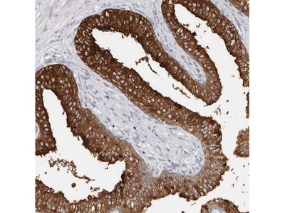 AKNAD1 Antibody