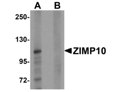 Rabbit Polyclonal ZMIZ1 / Zimp10 Antibody