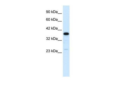 C4 binding protein B Antibody
