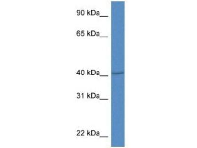 PRDM12 Antibody
