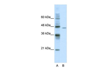 DDX25 Antibody