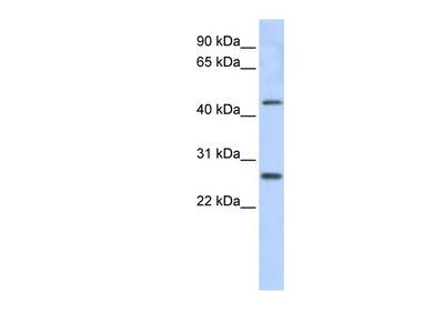 PRAMEF10 Antibody
