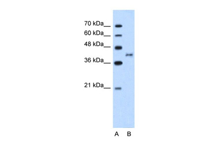 Bradykinin RB2 / BDKRB2 Antibody
