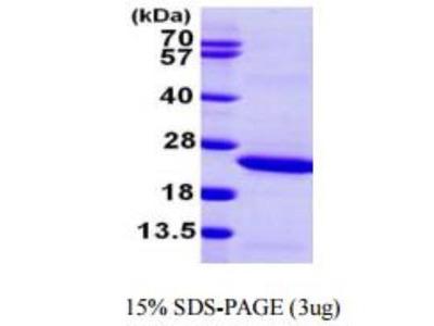 Lipocalin-2 / NGAL Recombinant Protein