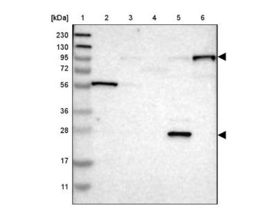 Paladin Antibody